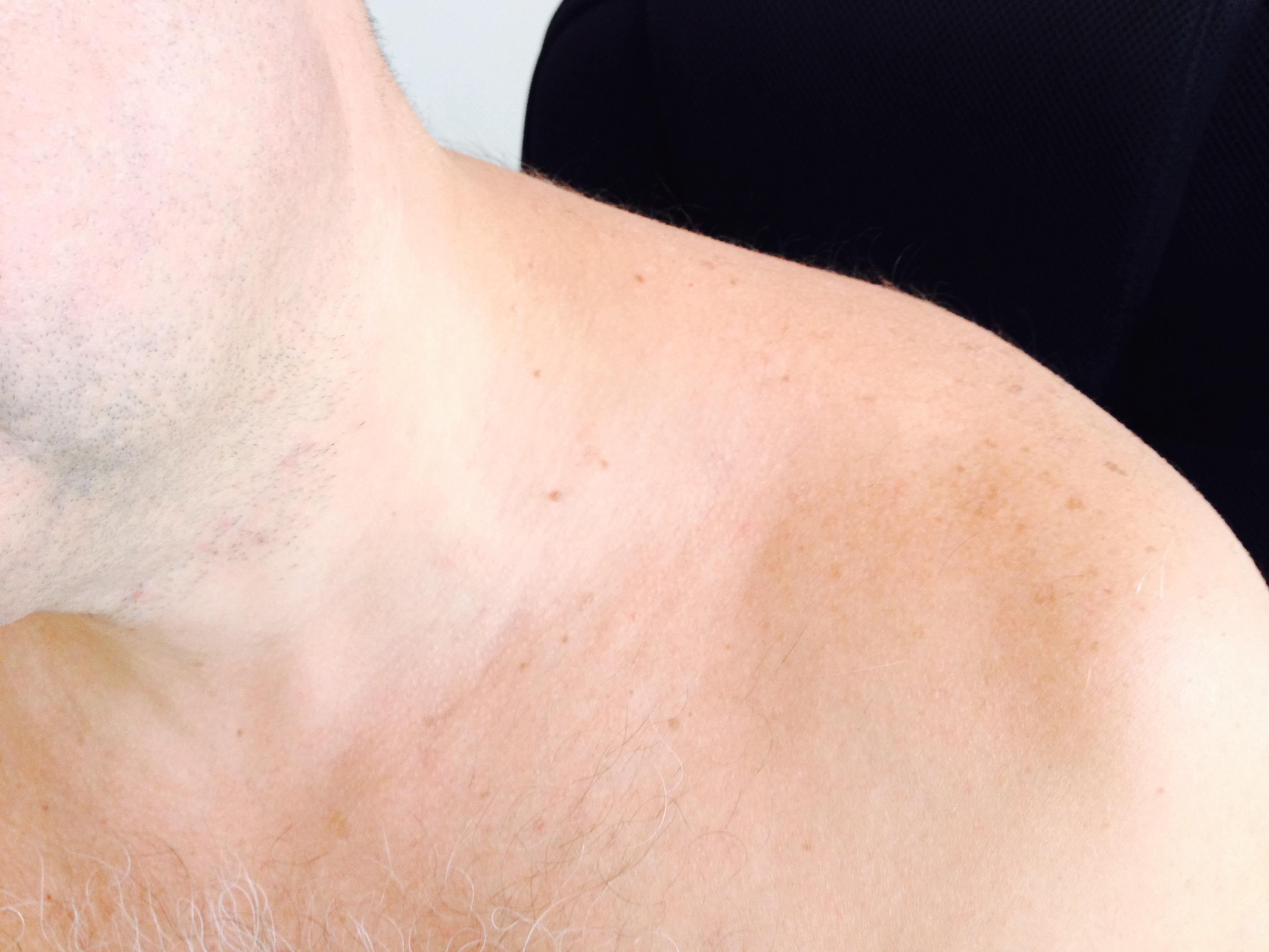 дискератоз кожи лечение