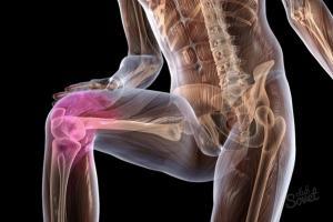 Паразиты суставы лечение инвалидность после эндопротезирования коленных суставов